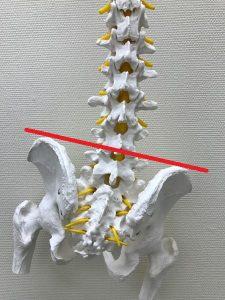腰椎椎間板ヘルニア豊洲