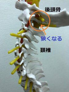 豊洲カイロ頭痛原因